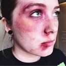 Facial Bruising and Bleeding SFX Makeup (Part 3)