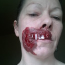 Rotting Mouth And Teeth Exposed