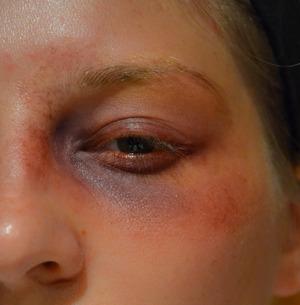 Special FX black eye