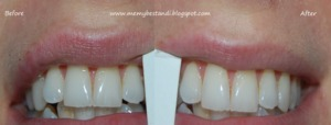 Colgate max white before and after http://memybestandi.blogspot.com/2011/06/oh-great-white-one-is-it-true-what-they.html
