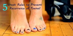 Is your toenail fungus reoccurs even after the effective treatment then here know how to prevent it from recurrence