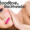 Goodbye, Blackheads!♡