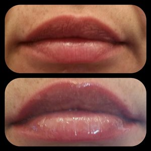 Any lip enhancers?? | Beautylish