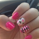 Pink anchor nails