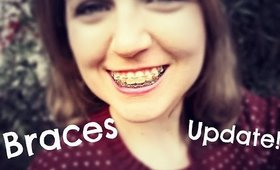 Final Braces Update!  Getting Them Taken Off Soon!