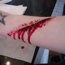 Knife Wounds..