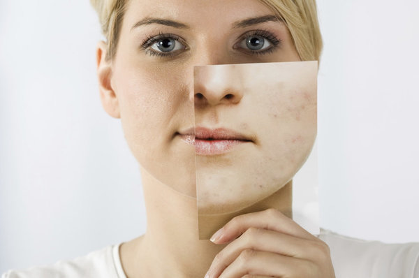 Acne Aftermath How To Cover Up The Scars That Are Left Behind Beautylish