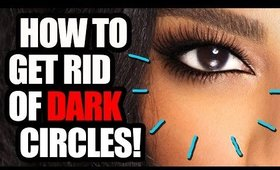 How to Get Rid of Dark Circles!