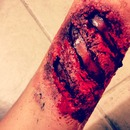 Sfx arm wound