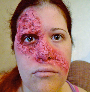 Facial Burn - A makeup look I did last Halloween..oh how i LOVE liquid latex :)