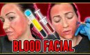 I Got The Vampire Facial for Acne Scars- Worth the $$$??