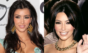 Celebrity Botox: Before and Afters