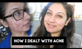 How to deal with acne my acne & feel confident my story