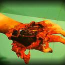 Torn Hand