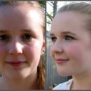 Anna-Before and After 2