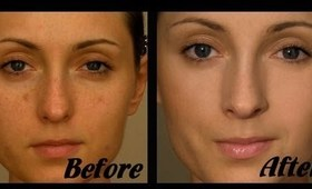 How to cover acne and pigmentation