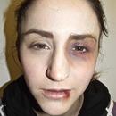 Fight Victim