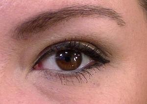 Close up of Goss Method Eye