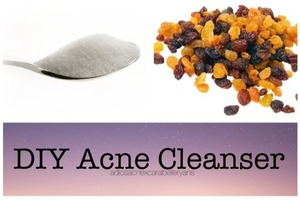 ♡HAPPY 4th OF JULY♡   Looking for a acne clearing cleanser? Replace your skincare routine with this organic cleanser that works wonders! Inexpensive and can be easily made at home!  You'll need ♡Warm water ♡Regular course grained-sugar ♡Raisins   ♡Rinse your face with warm water (to open up the pores). Gently rub sugar over your face, avoiding the acne areas. (Helps to exfoliate) Lastly, gently run acne spots with raisin.  Rinse off and dab dry with some facial tissues or a clean cloth! Ta Da! Done!♡  This has worked very well for me. I currently use this in place of Etude House's cleanser every morning. Inexpensive and simple, give it a try! Drop me a comment if you need any clarifications.♡  Hope this helps♡ Love, Carabelle