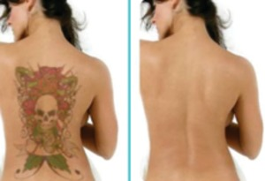 If you are looking for more information, you can contact the customer care experts anytime of the day. If you are looking for an option to get rid of those unwanted tattoos, this is the right place. This content will provide some basic information on the most advanced tattoo removal option available in the market. Having a thorough understanding on the process and its cost will help you to take a wise decision and opt for the process. Although this can be an expensive procedure, performing a thorough research can help you to find an affordable solution. On the other hand, if you are not aware of the rates that are charged by the experts for providing different types of tattoo removal services, availing the best price can become quite challenging. Although there are many sources for choosing an affordable procedure, looking online is considered as the best. Researching on the web will help you to find prices of different services. On the other hand, you can also know more about the quality and reputation of the services provided by the experts when looking online. Once you have found the right service, you can fix an appointment online.   Save Money with the Best Service Providers:  As mentioned above, looking online will help you to find some of the top service providers who can offer you the best services. The cost of the tattoo removal process can vary based on numerous aspects. For instance, it depends on the experience, location, specialization of the expert and also on the size of the tattoo you are planning to remove. Although there are many procedures available in the market, IPL is considered as one of the best. IPL, which stands of intense pulsed light treatment, is a laser based procedure that can offer you the best results. Looking online will also help you to know more about the time of the treatment procedure. This will help you to make an informed decision.   A Service to Meet your Needs:  Locating laser tattoo removal expert could be done easily when you are looking online. Once you have the right expert in hand, he or she will perform the procedure based on your requirements and specifications. Before choosing a clinic or an expert, it is very important to perform a small background research. This will help you to find some of the top experts located in your area. This is also a great way to know more about the various types of services provided by the clinic you choose.  Author Resource:  This article is written by Albert Batista. He has written many articles related to skin and beauty care issues. He wants to create awareness in people especially in issues related to healthcare, which most of the people lack. His main idea in this article is to put in all the necessary information for the people which they can refer to at the time of need and searching for laser tattoo removal expert: http://www.celcius.com.au/pages/tattoo-removal