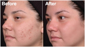 Laser Acne Treatment.