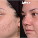 Acne Treatment with the Help of Laser in Adelaide