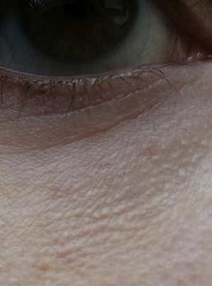 milia skin bumps #11