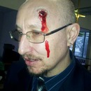 Bullet Wound / Blunt Force Trauma