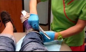 Removing My cast!