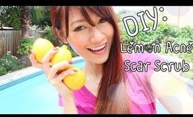 DIY Beauty: Lemon, Honey, Sugar Scrub {Acne & Scar Removal}