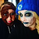 Burned face and ice princess