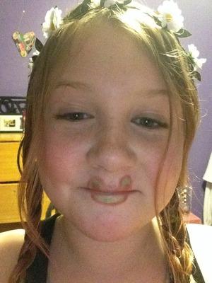My fail at frog lips