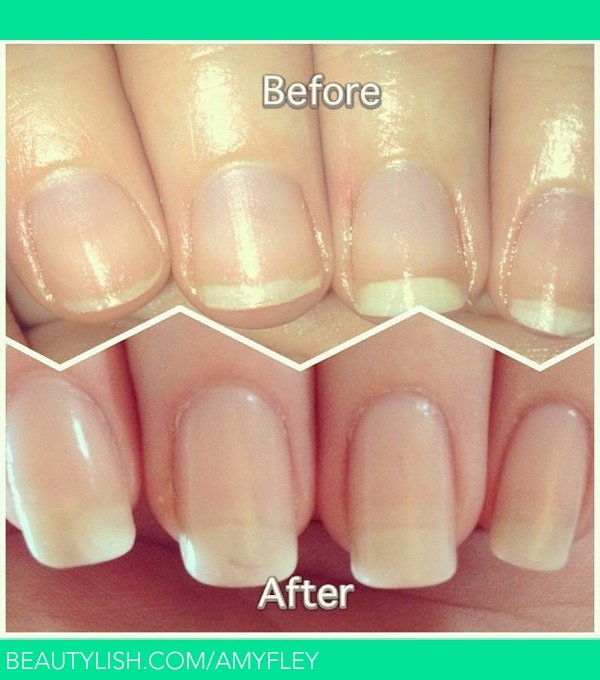 Before and After nail growth! | Amymay W.\'s (AmyFley) Photo | Beautylish