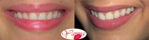 http://makeupfrwomen.blogspot.com/2011/12/teeth-whitening-result-bonus-xoxo.html