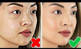 HOW TO: Get Rid Of Hyperpigmentation & Dark Spots FAST!