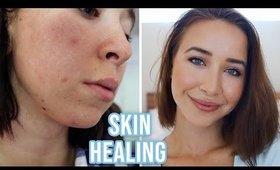 HOW I CLEARED MY SKIN FAST: Acne Healing & Anti Aging