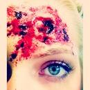 Bullet Wound!
