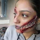 Open face wound