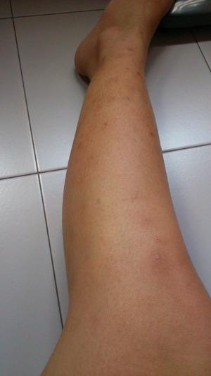 Need Help Remove Of Hyperpigmented Scar Beautylish