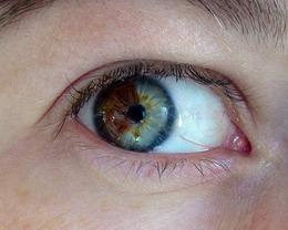 Turn Brown Eyes Blue!