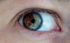 Turn Brown Eyes Blue!