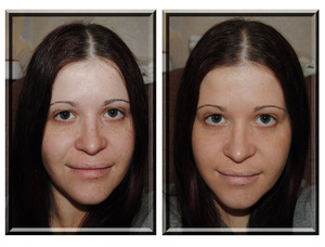 before and after photo using boscia B.B. Cream SPF 27 PA++