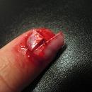 Ripped up nail