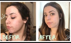 My Skincare Routine for Severe Acne and Scarring