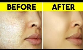 10 Clever Tricks To Stop Dry Skin FAST!