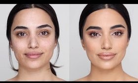 Flawless Foundation on Acne Scarred Skin   Hindash