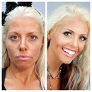Glamour Before & After