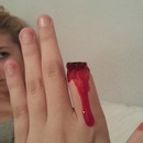 Finger Ripped Off