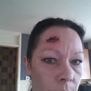 Gash To The Head