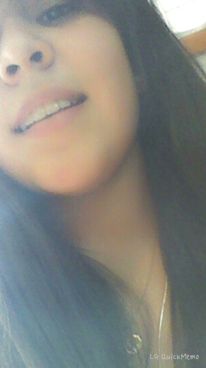 just got my braces of  how do i look?!?